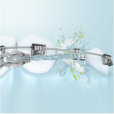 Pflege von Brücken, Kronen oder festen Zahnspangen