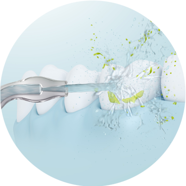 Reinigung der Zahnoberflächen