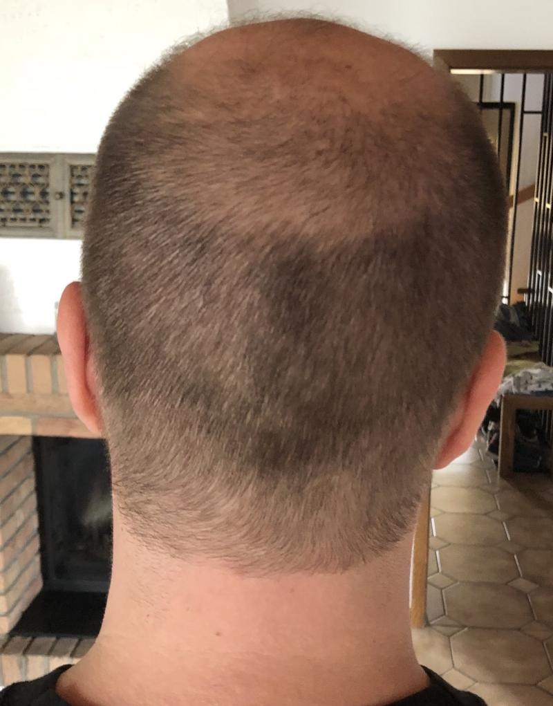 Frisur 6mm Frisuren Männer